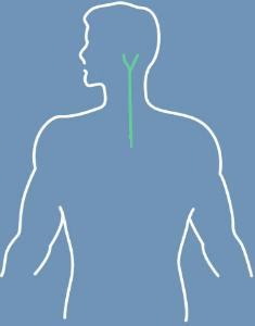 Atherosclerosis graphic
