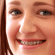 Children's braces