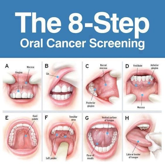 The 8 steps to Oral Cancer screening