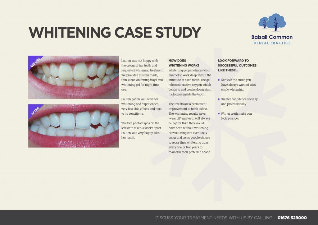 Whiter teeth: a case study   Balsall Common Dental