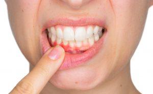 smile, dentalhealth, oralhealth, teeth,